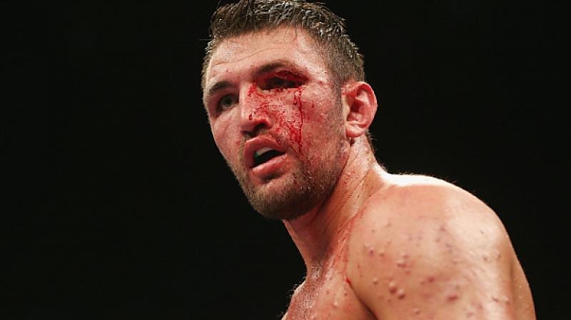 Британският боксьор Хюи Фюри (21 победи, 11 с нокаут) е