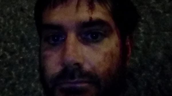 Ето какво е причинила полицията на журналиста Димитър Кенаров на протеста